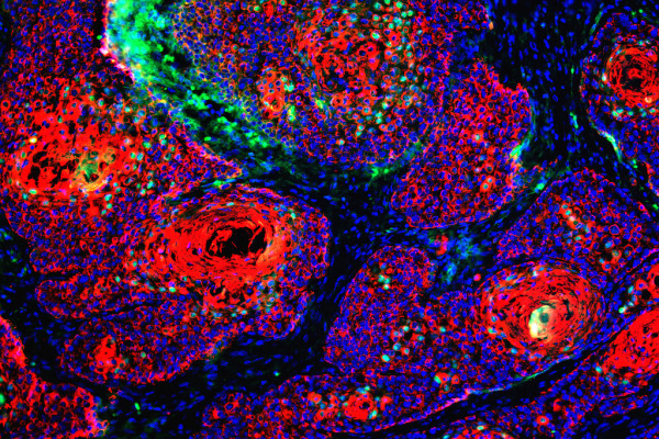 High-risk papilloma cells