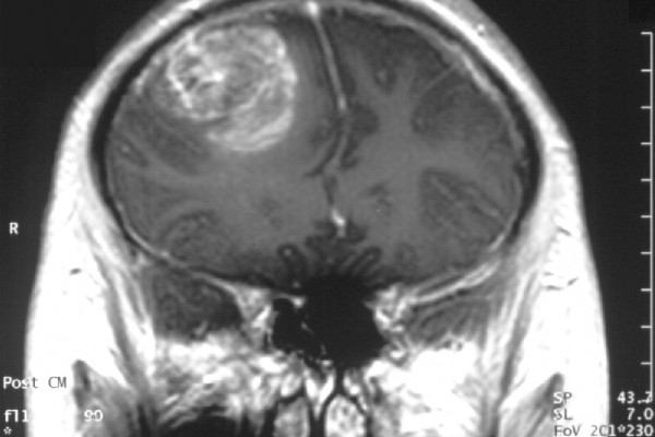 Gliobastoma (astrocytoma) WHO grade IV - MRI coronal view, post contrast. 15 year old boy.