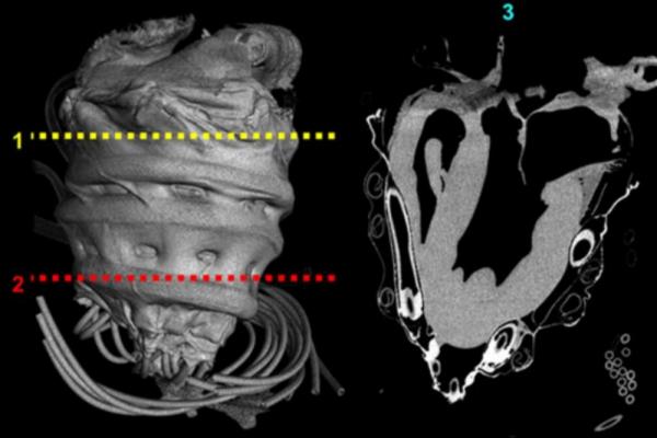 Robotic sleeve for heart failure