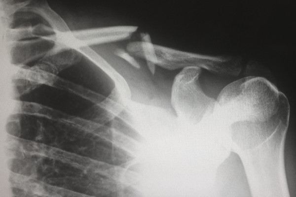 x-ray of broken bone