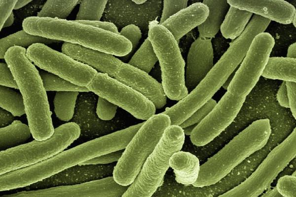 Esterichia coli bacteria.