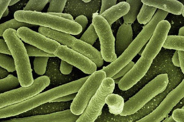 Esterichia coli