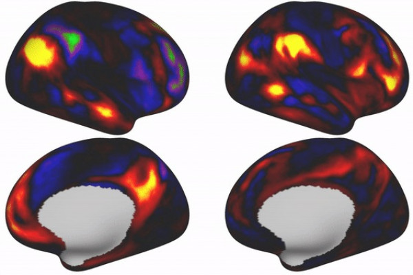 The shape and exact location of certain brain regions is linked to intelligence, life satisfaction and other behavioural factors.