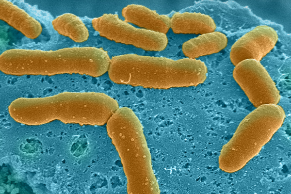 Microscope images on bacteria on a slide