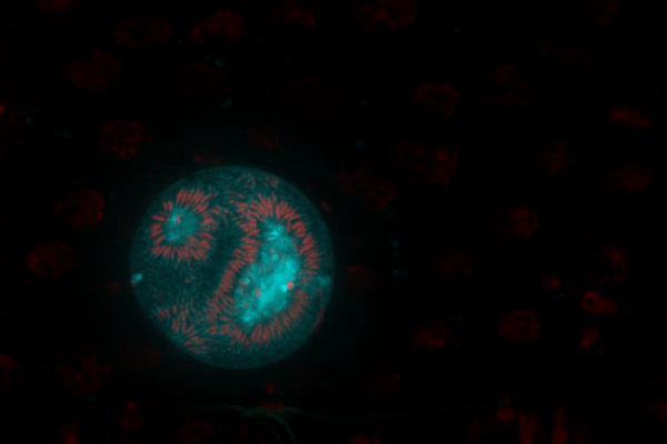 A protein called TRP1 allows the parasites that cause malaria to move around inside mosquitoes.