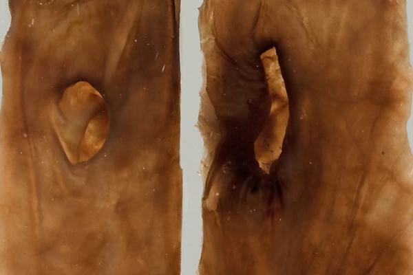 Stomach Diverticula