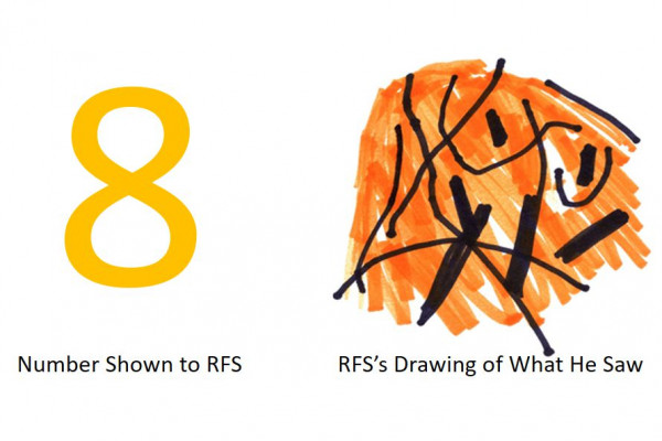 Patient RFS can't see the numbers two through nine - instead, he just sees this scramble of lines.