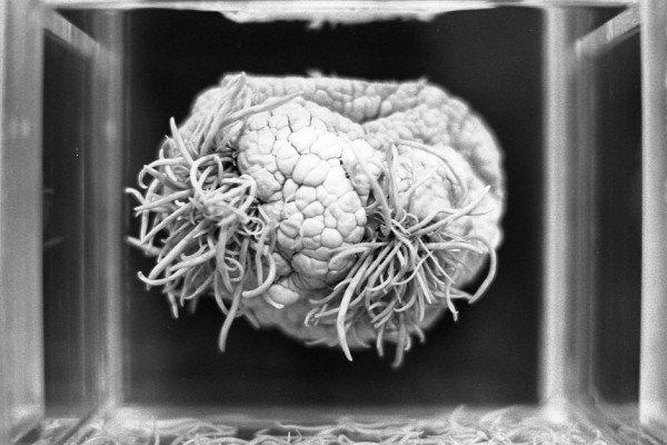 parasite worm brain