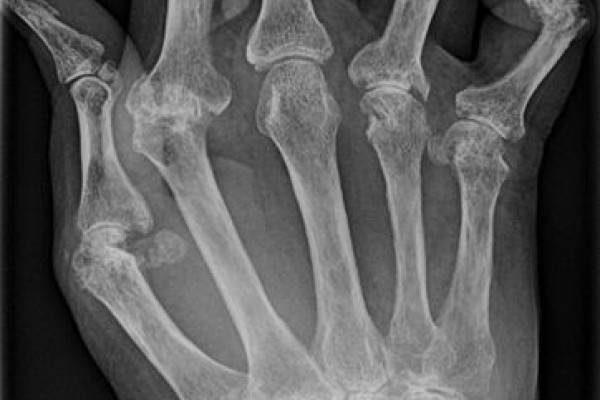Rheumatoid Arthritis x-ray