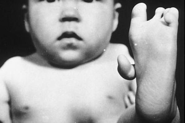 Thalidomide Deformed baby