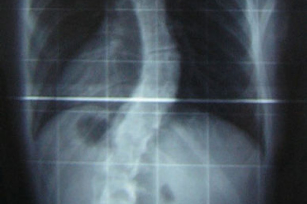 An X-ray of the spine of a patient with scoliosis