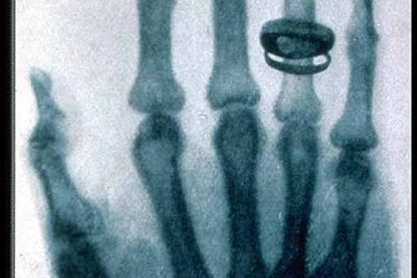 Roentgen's X-ray picture of the hand of Alfred von Kolliker, taken 23 January 1896