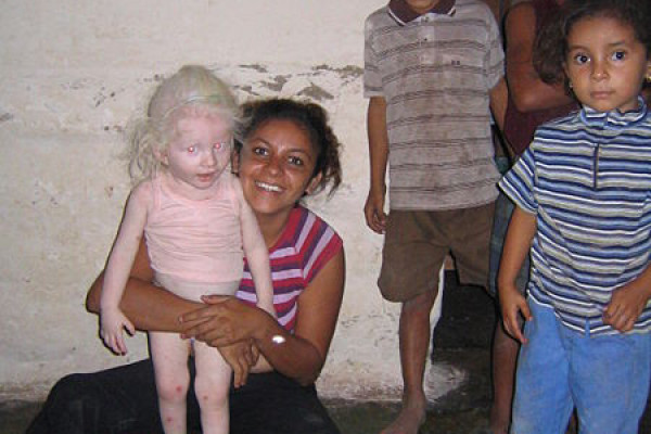 A albino girl in Honduras.