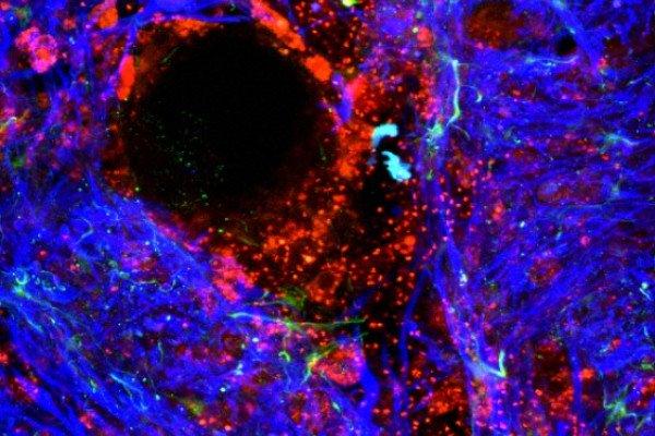 Damaged blood-brain barrier
