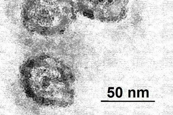 Electron microscope of Hepatitis C Virus