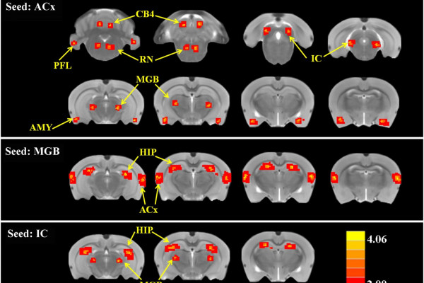 Tinnitus and hyperacusis involve hyperactivity and enhanced connectivity in auditory-limbic- arousal-cerebellar network