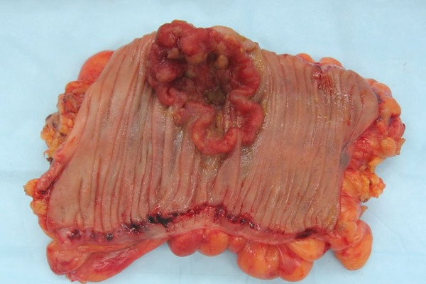 Appearance of the inside of the colon showing one invasive colorectal carcinoma (the crater-like, reddish, irregularly shaped tumor).