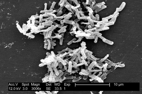 Clostridium difficile (C.diff) microbes seen under the electron microscope