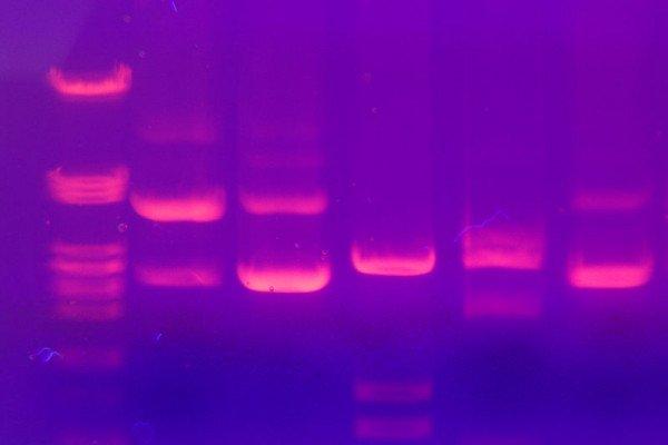 DNA electrophoresis