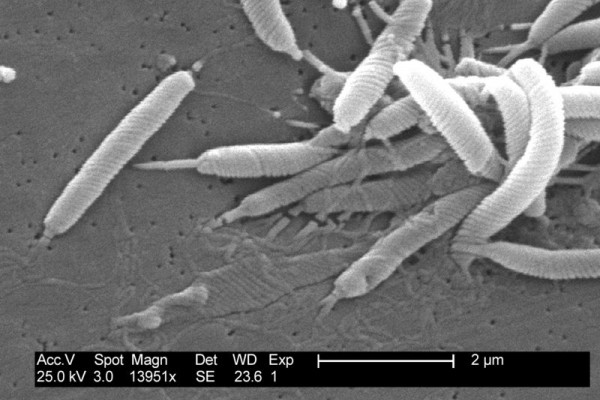 Scanning electron micrograph of Helicobacter bacteria