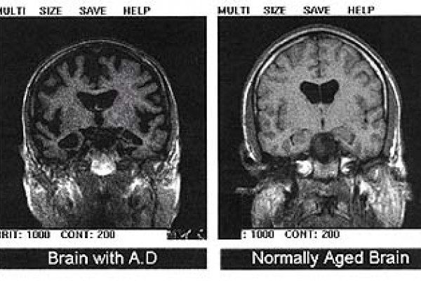 Two transaxial slices through the head. The right image shows a normal brain; the left has differences that are interpreted as indication of Alzheimer's disease