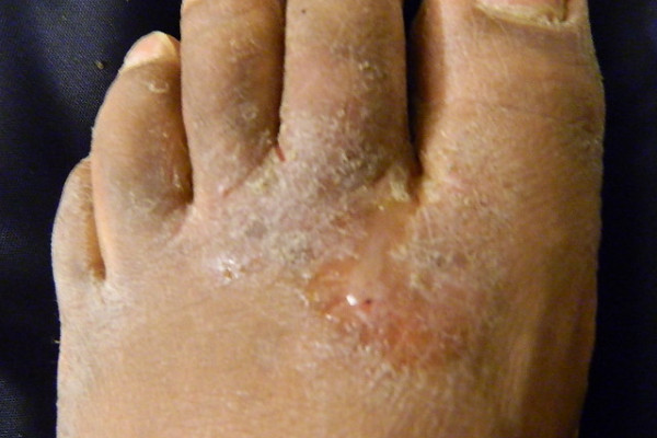 Athlete's foot fungal infection