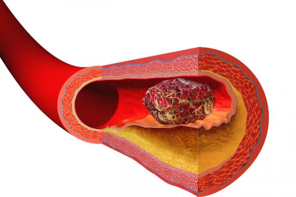 Blocked artery