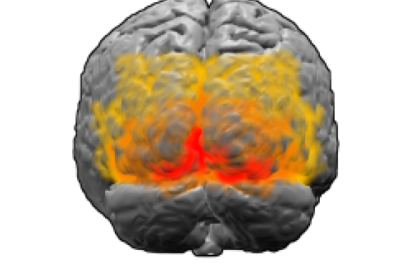 Brodmann areas 17, 18 and 19. BA 17 is shown in red. BA 18 is orange. BA 19 is yellow. This is a rear view of the brain. Much of BA 17 is hidden from view on the medial surface (between the hemispheres), on the ventral bank of the calcarine sulcus...