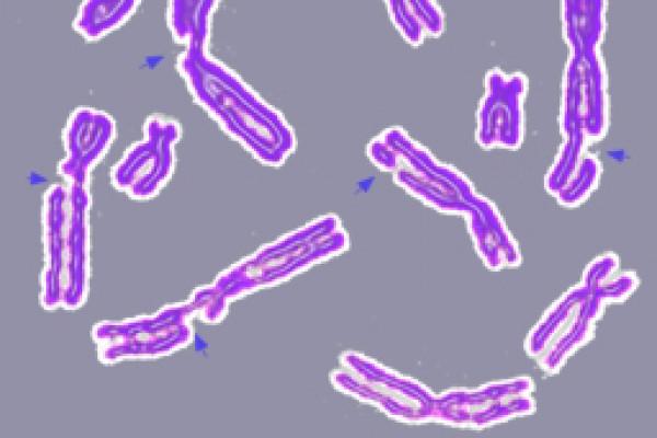 Broken chromosomes