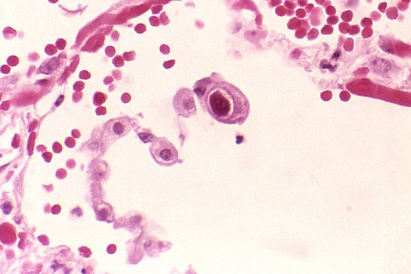 Cytomegalovirus infection: characteristic owl-eye inclusions.
