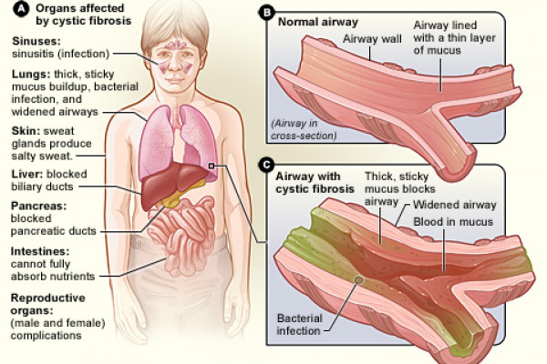 the organs that cystic fibrosis can affect. Figure B shows a cross-section of a normal airway. Figure C shows an airway with cystic fibrosis. The widened airway is blocked by thick, sticky mucus that contains blood and bacteria.