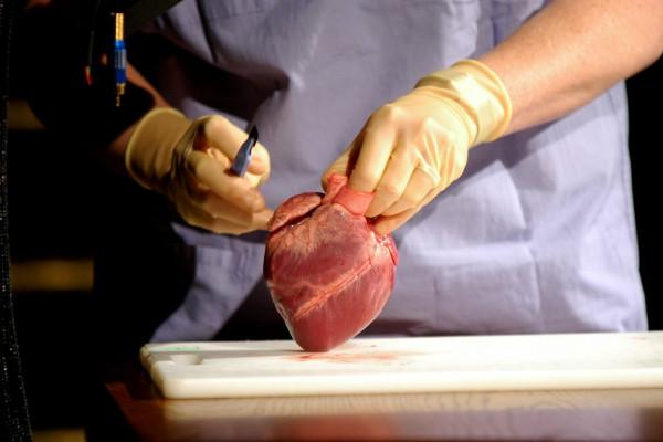 Pathology Week - Heart Attack