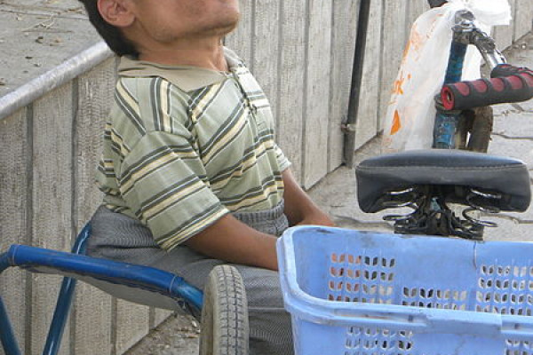 A man with achondroplasia, also known as dwarfism.
