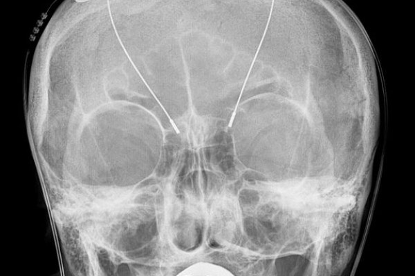 Deep brain stimulation - probes shown in X-ray of the skull (white areas around maxilla and mandible represent metal dentures and are unrelated to DBS devices)