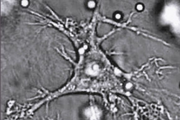 A Dendritic Cell