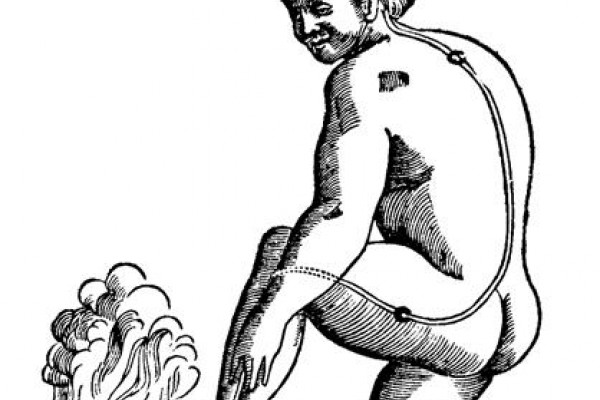 Illustration of the pain pathway in René Descartes' Traite de l'homme (Treatise of Man) 1664