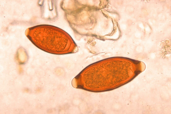 Eggs of Trichuris trichiura and Trichuris vulpis. The T. vulpis egg is the larger of the two. Parasite.