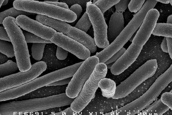 Escherichia coli: Scanning electron micrograph of Escherichia coli, grown in culture and adhered to a cover slip.