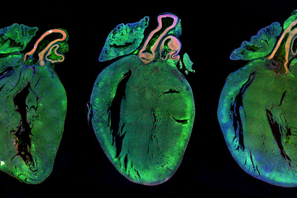 Neonatal rat hearts treated with a control microRNA (left) or two human microRNAs strongly increasing cardiomyocyte proliferation (middle and right). The picture shows the presence of several, replicating (red) cells in the muscular mass of the left...