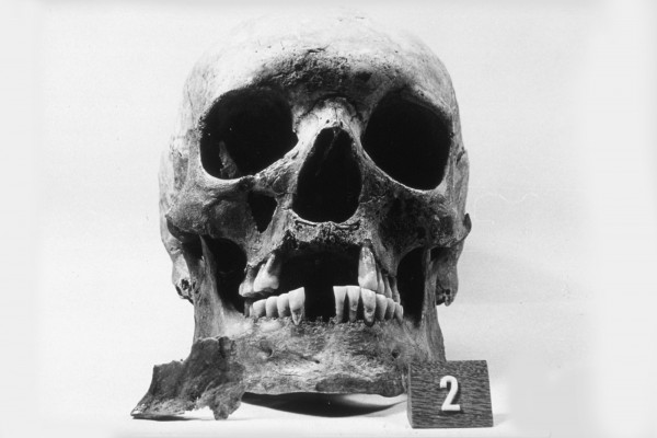 Skull showing loss of front teeth, widening of the nose opening, and loss of bone in upper jaw underneath nose - Excavated from the 12th-16th century AD leprosy hospital cemetery at Naestved, Denmark