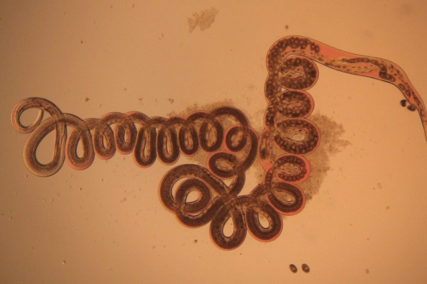 The nematode Heligmosomoides polygyrus, seen via optical microscope. Taken from the digestive tract of a wood mouse (Apodemus sylvaticus).
