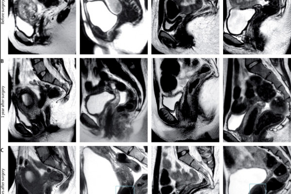 MRI scans of patients implanted with vaginas grown in-vitro.