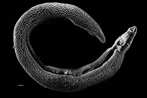 Electron micrograph of an adult male Schistosoma parasite worm. The bar (bottom left) represents a magnification of 0.5mm.