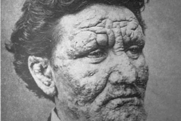 24 year old man from Norway, suffering from leprosy