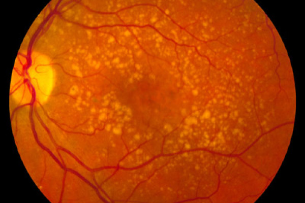 A fundus photo showing intermediate age-related macular degeneration.