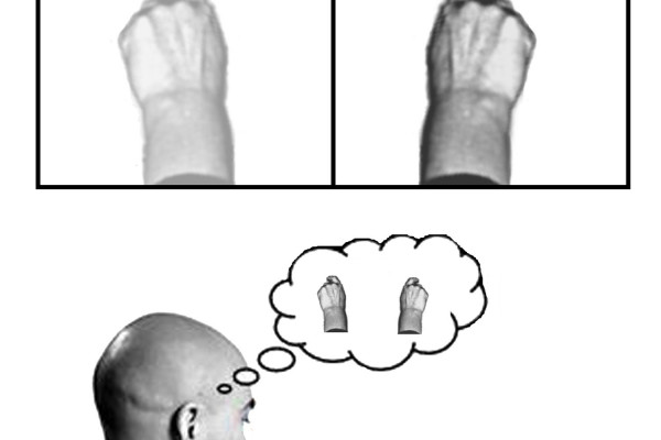 A diagrammatic explanation of the mirror box. The patient places the good limb into one side of the box (in this case the right hand) and the amputated limb into the other side. Due to the mirror, the patient sees a reflection of his good hand where...