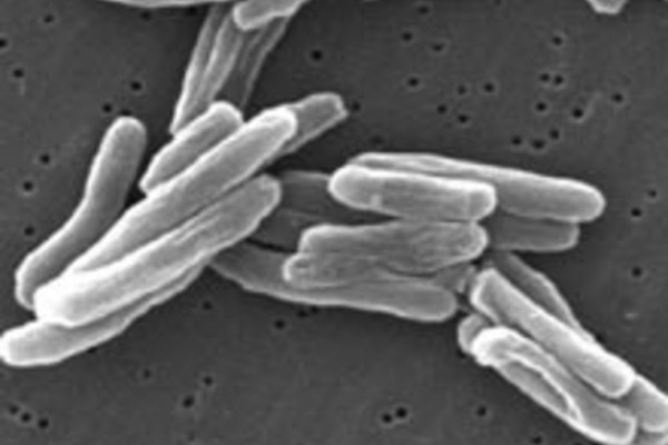Mycobacterium tuberculosis (TB) bacteria seen under scanning electron microscope (x15000)