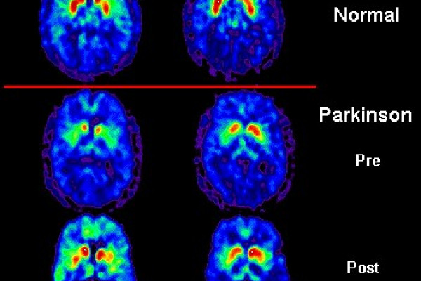 PET scan of Parkinson's patient