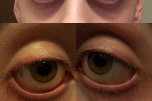 These photographs (all taken at the same time, of the same 19 year old, caucasian male) serve as examples of periorbital darkness, periorbital puffiness, pronounced vein visibility, and shadowing due to sunken eye sockets. It should also be noted...