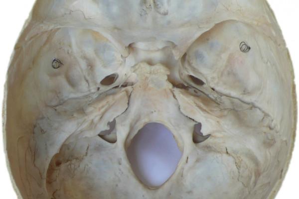 Human Neurocranium - Good Bowl?
